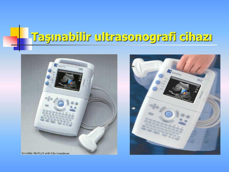 ULTRASONOGRAFİDE TEMEL İKİ TANI YÖNTEMİ KULLANILMAKTA I.Real–time görüntüleme II.Doppler ultrasonografi  Sürekli dalga Doppler  Dubleks Doppler  Re