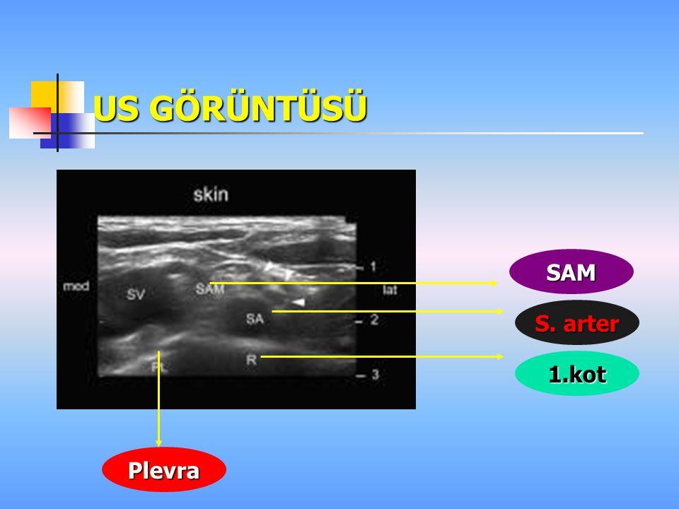 ULTRASOUND-GUIDED INFRACLAVICULAR BRACHIAL PLEXUS BLOCK Yüksek başarı oranı 57 olguda % 95 Kolayca kateter yerleştirme olanağı Komplikasyon oranı düşük Parestezi aramama Hasta konforu çok iyi Real time infraklavikular anatomiyi tanıma Ootaki C Reg Anest and Pain Ootaki C Reg Anest and Pain 2000:25(6) 600-604