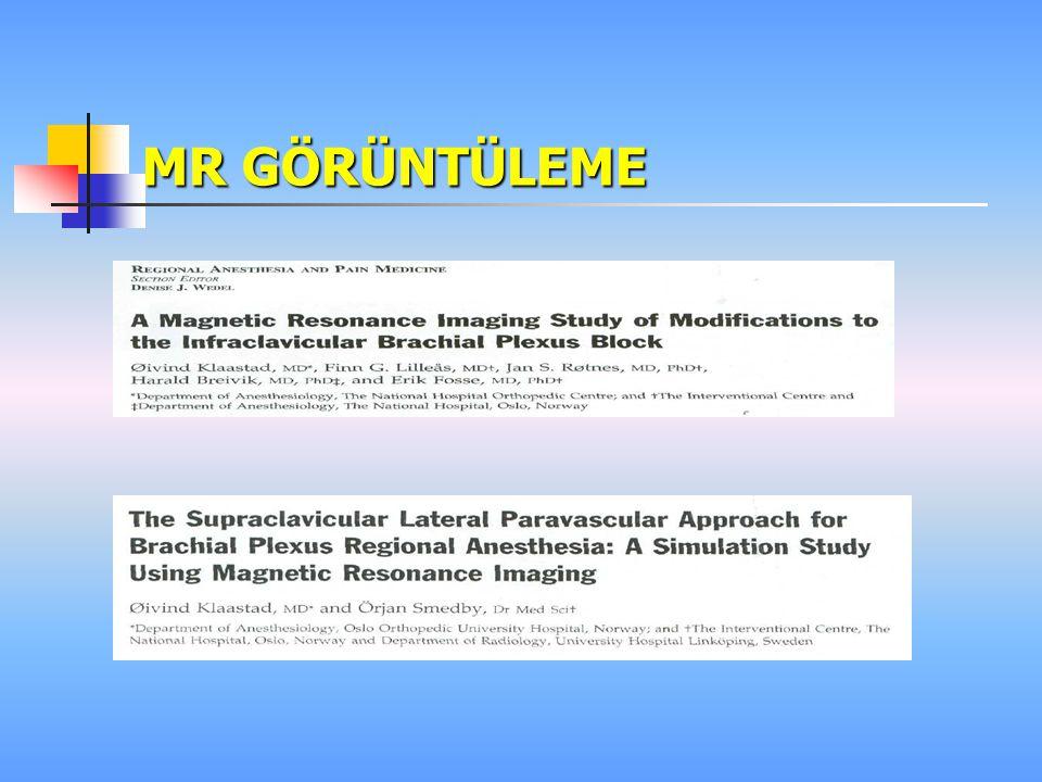An evalation of the supraclavicular plump-bob technique for brachial plexus block by magnetic resonance imaging Klaastad Q Anesth Analg 2003 96(3): 862-7  Gönüllülerde  Pnömotoraks riski  İğnenin giriş açısı  45 derece sefale