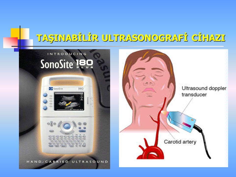 REJYONEL ANESTEZİDE Özellikle periferik sinir blokları için taşınabilir ultrasonografi özellikle tercih edilmeli anestezi pratiğine katılması için çab