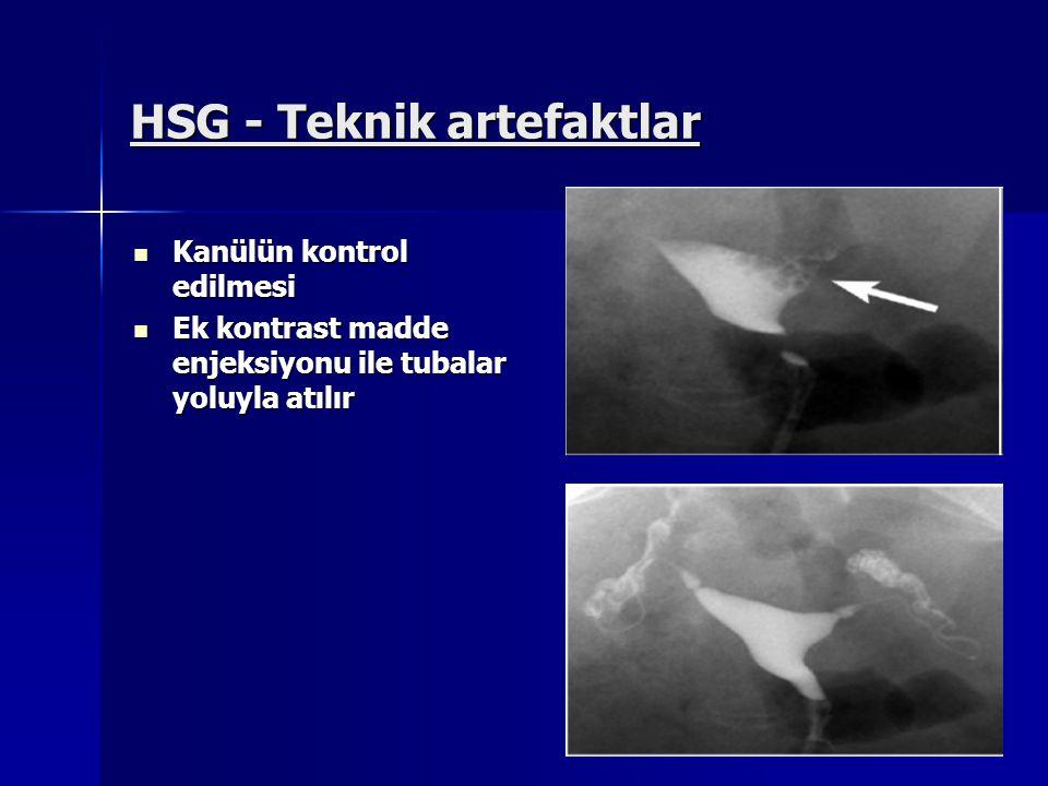 HSG - Teknik artefaktlar Kanülün kontrol edilmesi Kanülün kontrol edilmesi Ek kontrast madde enjeksiyonu ile tubalar yoluyla atılır Ek kontrast madde