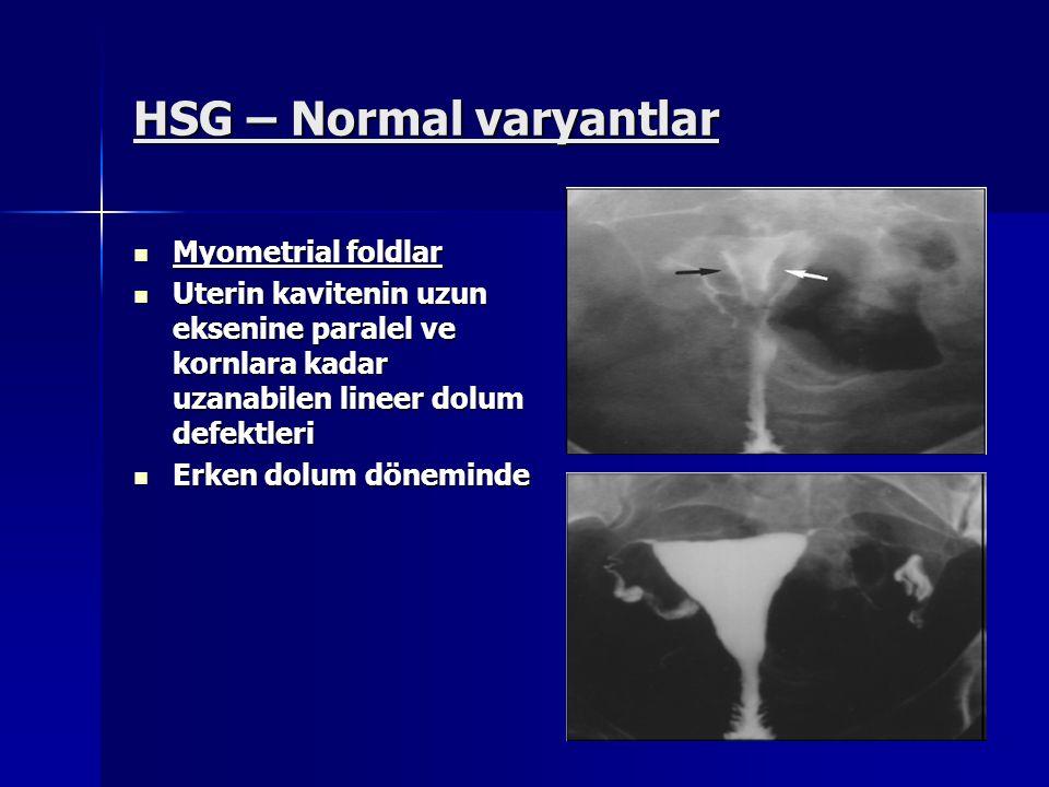 HSG – Normal varyantlar Myometrial foldlar Myometrial foldlar Uterin kavitenin uzun eksenine paralel ve kornlara kadar uzanabilen lineer dolum defektl
