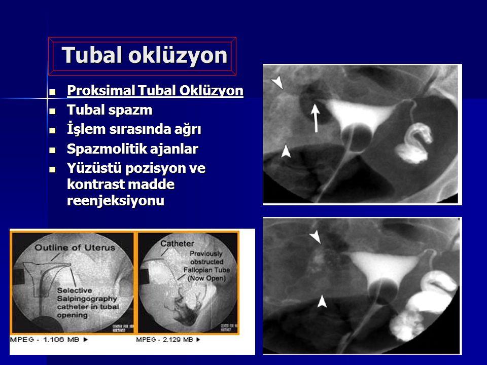 Tubal oklüzyon Proksimal Tubal Oklüzyon Proksimal Tubal Oklüzyon Tubal spazm Tubal spazm İşlem sırasında ağrı İşlem sırasında ağrı Spazmolitik ajanlar