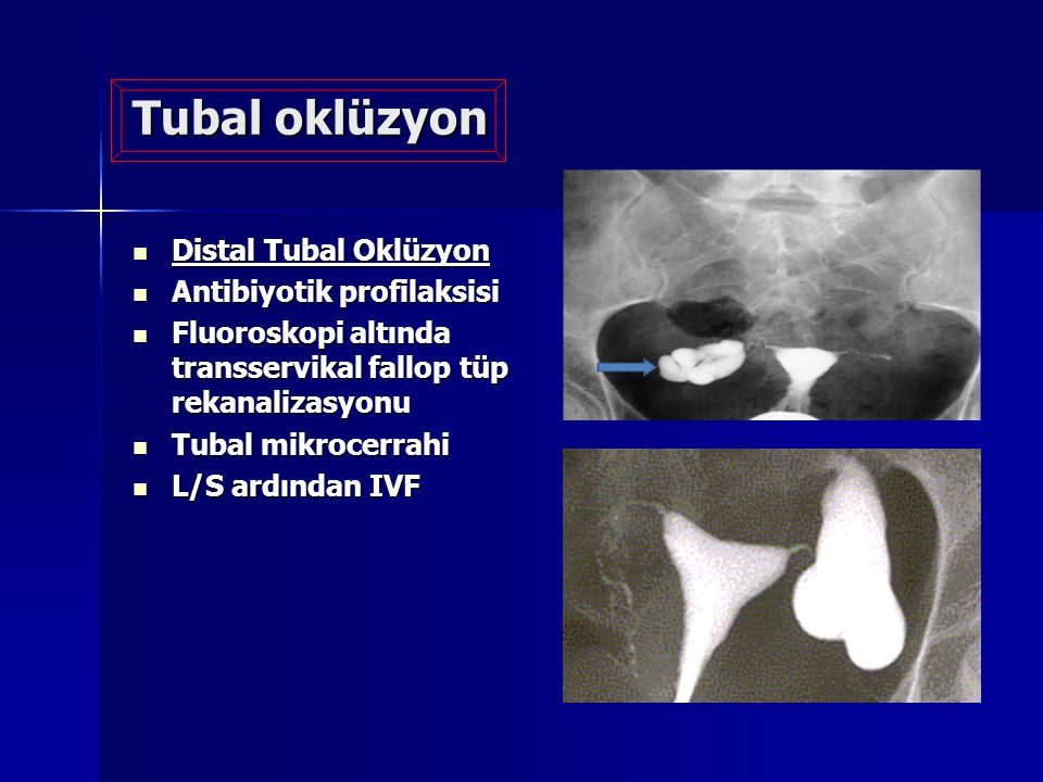 Tubal oklüzyon Distal Tubal Oklüzyon Distal Tubal Oklüzyon Antibiyotik profilaksisi Antibiyotik profilaksisi Fluoroskopi altında transservikal fallop