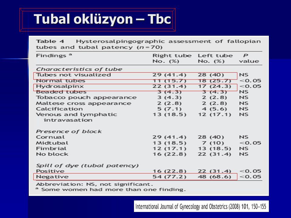 Tubal oklüzyon – Tbc