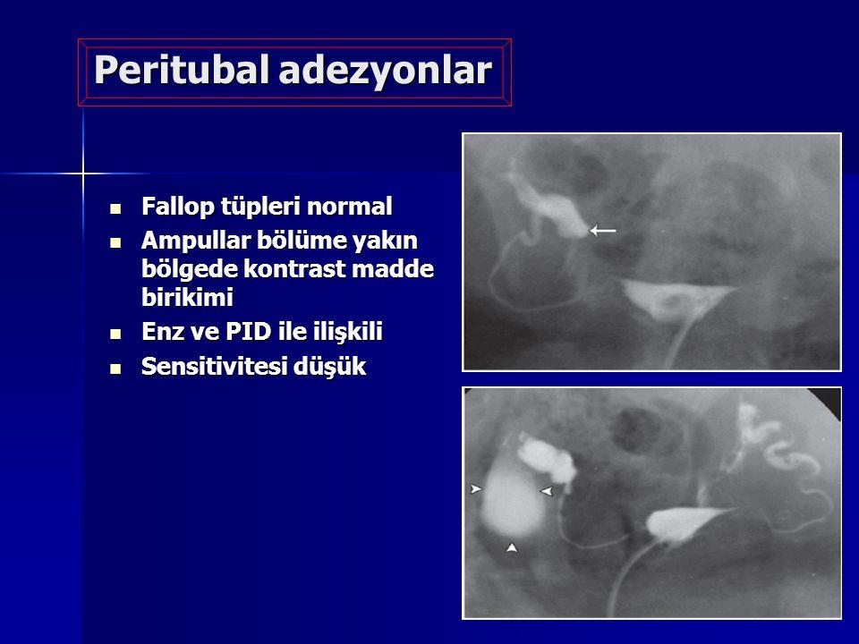 Peritubal adezyonlar Fallop tüpleri normal Fallop tüpleri normal Ampullar bölüme yakın bölgede kontrast madde birikimi Ampullar bölüme yakın bölgede k