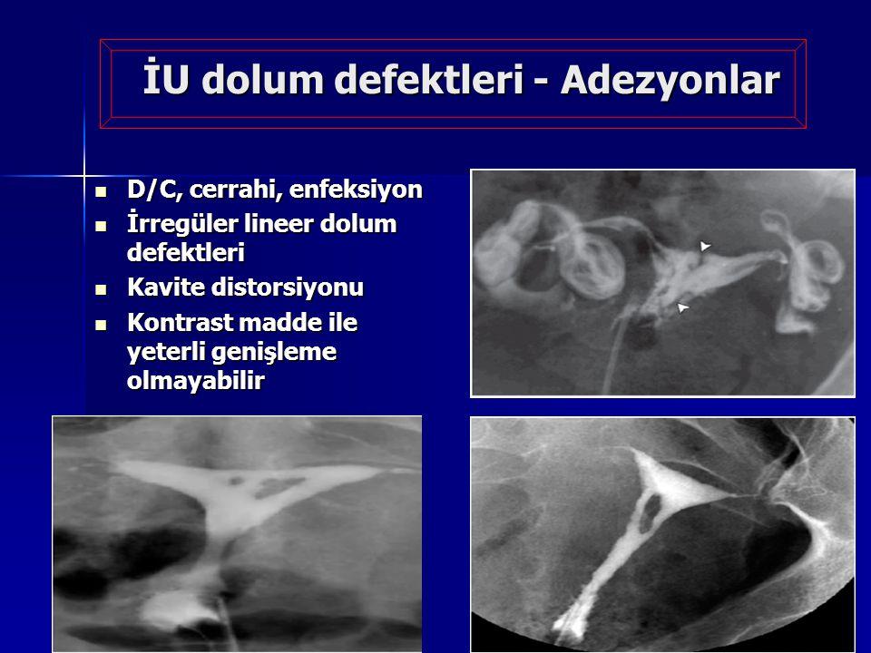 İU dolum defektleri - Adezyonlar D/C, cerrahi, enfeksiyon D/C, cerrahi, enfeksiyon İrregüler lineer dolum defektleri İrregüler lineer dolum defektleri