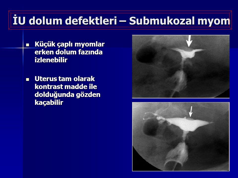 İU dolum defektleri – Submukozal myom Küçük çaplı myomlar erken dolum fazında izlenebilir Küçük çaplı myomlar erken dolum fazında izlenebilir Uterus t