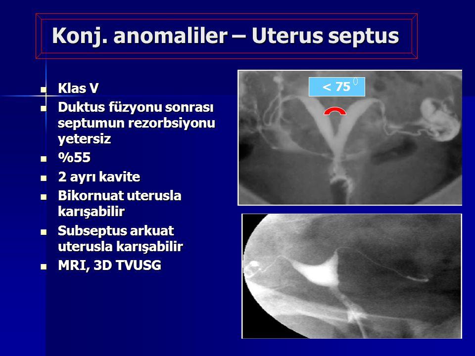 Konj. anomaliler – Uterus septus Klas V Klas V Duktus füzyonu sonrası septumun rezorbsiyonu yetersiz Duktus füzyonu sonrası septumun rezorbsiyonu yete