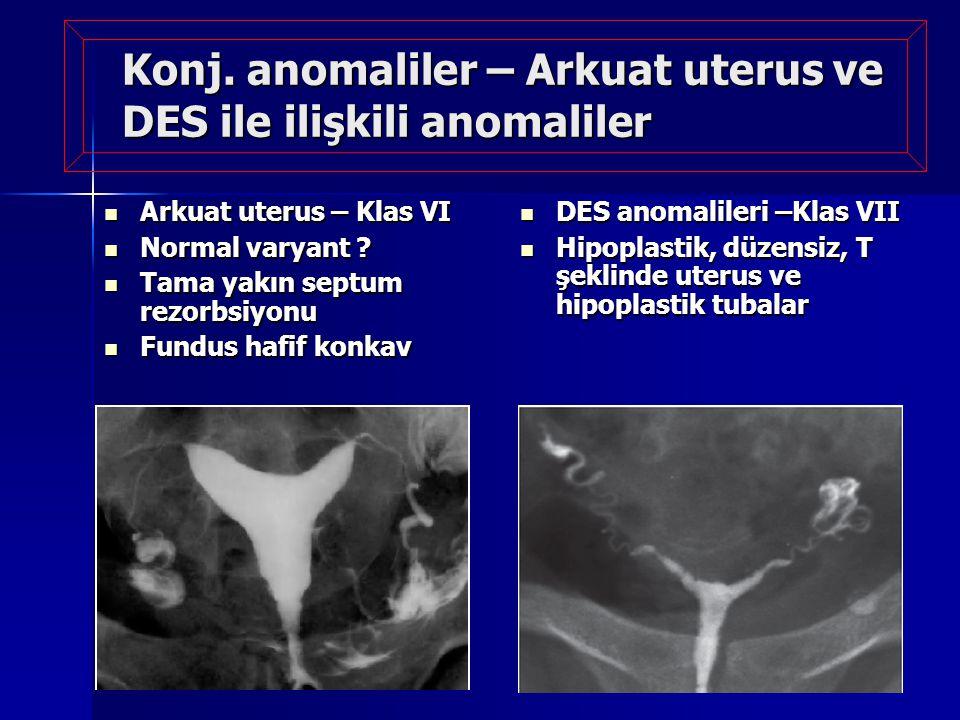 Konj. anomaliler – Arkuat uterus ve DES ile ilişkili anomaliler Arkuat uterus – Klas VI Arkuat uterus – Klas VI Normal varyant ? Normal varyant ? Tama