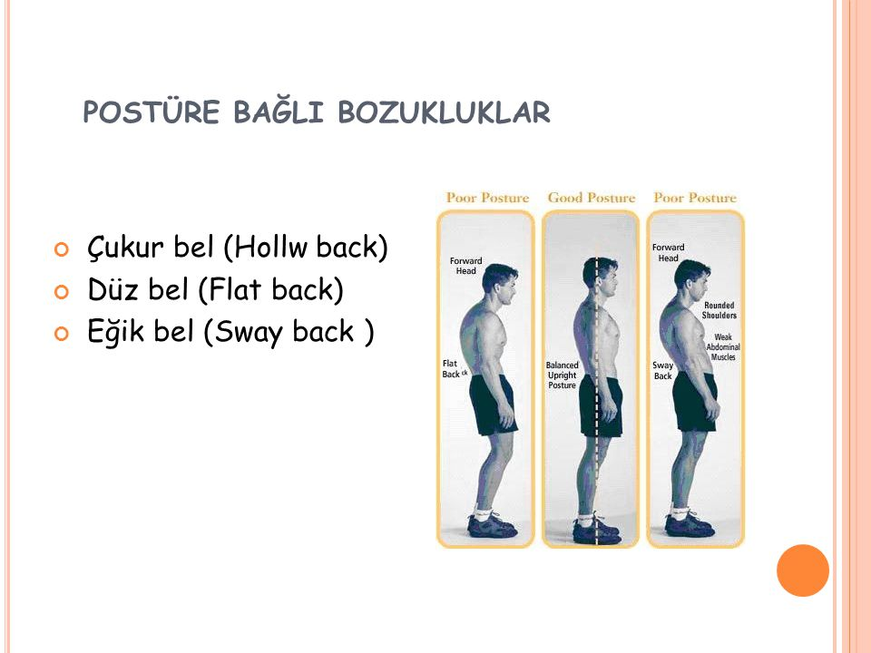 POSTÜRE BAĞLI BOZUKLUKLAR Çukur bel (Hollw back) Düz bel (Flat back) Eğik bel (Sway back )