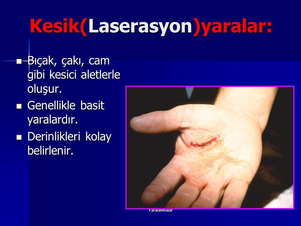 Yaralanmalar Kesik(Laserasyon)yaralar: Bıçak, çakı, cam gibi kesici aletlerle oluşur. Bıçak, çakı, cam gibi kesici aletlerle oluşur. Genellikle basit