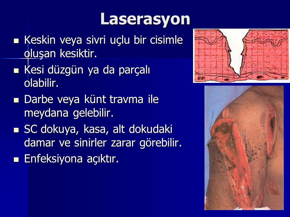 Laserasyon Keskin veya sivri uçlu bir cisimle oluşan kesiktir. Keskin veya sivri uçlu bir cisimle oluşan kesiktir. Kesi düzgün ya da parçalı olabilir.