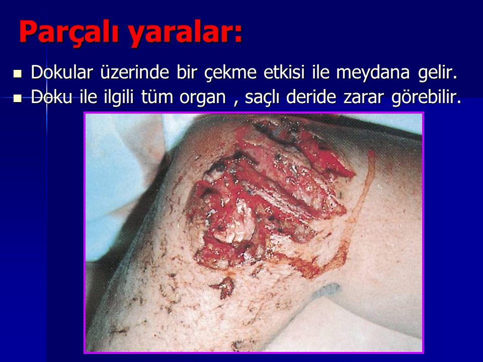 Yaralanmalar Parçalı yaralar: Dokular üzerinde bir çekme etkisi ile meydana gelir. Dokular üzerinde bir çekme etkisi ile meydana gelir. Doku ile ilgil