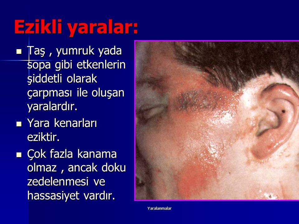 Yaralanmalar Ezikli yaralar: Taş, yumruk yada sopa gibi etkenlerin şiddetli olarak çarpması ile oluşan yaralardır. Taş, yumruk yada sopa gibi etkenler