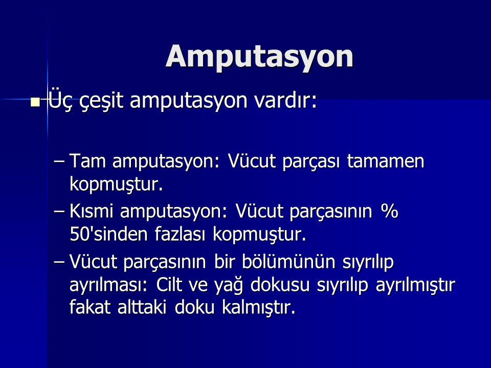 Amputasyon Üç çeşit amputasyon vardır: Üç çeşit amputasyon vardır: –Tam amputasyon: Vücut parçası tamamen kopmuştur. –Kısmi amputasyon: Vücut parçasın