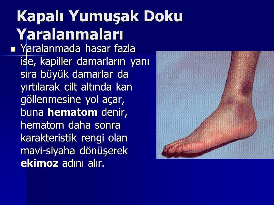 Kapalı Yumuşak Doku Yaralanmaları Yaralanmada hasar fazla ise, kapiller damarların yanı sıra büyük damarlar da yırtılarak cilt altında kan göllenmesin