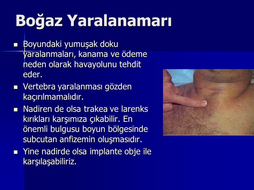 Boğaz Yaralanamarı Boyundaki yumuşak doku yaralanmaları, kanama ve ödeme neden olarak havayolunu tehdit eder. Boyundaki yumuşak doku yaralanmaları, ka