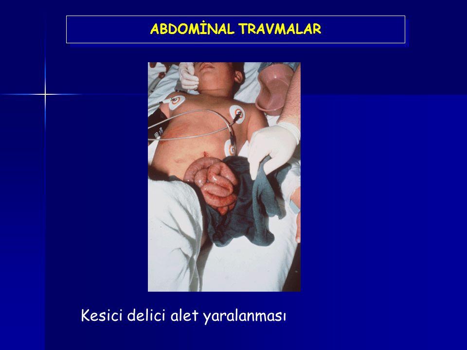 ABDOMİNAL TRAVMALAR Kesici delici alet yaralanması