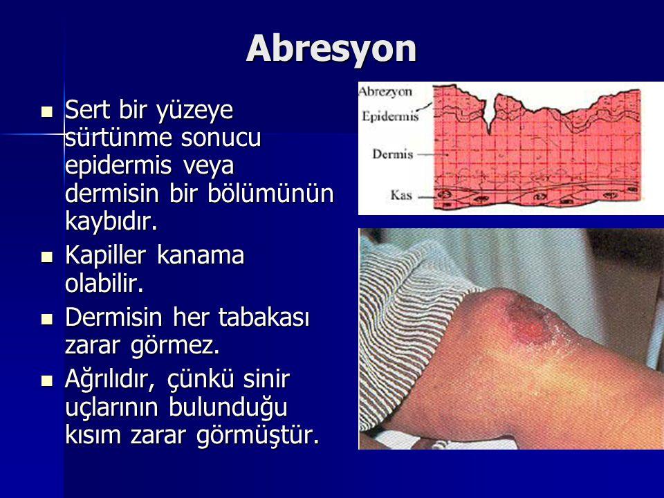 Abresyon Sert bir yüzeye sürtünme sonucu epidermis veya dermisin bir bölümünün kaybıdır. Sert bir yüzeye sürtünme sonucu epidermis veya dermisin bir b
