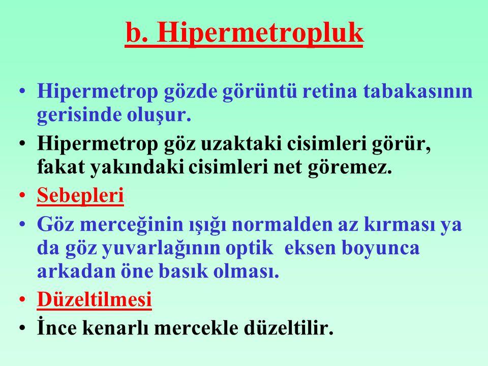 b. Hipermetropluk Hipermetrop gözde görüntü retina tabakasının gerisinde oluşur. Hipermetrop göz uzaktaki cisimleri görür, fakat yakındaki cisimleri n