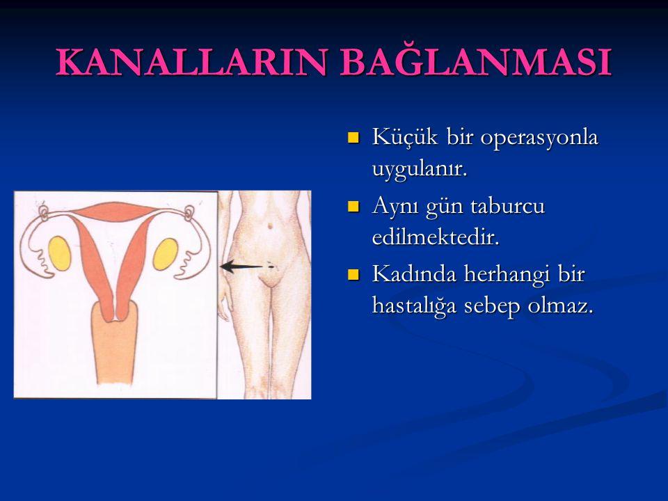 KANALLARIN BAĞLANMASI Küçük bir operasyonla uygulanır. Aynı gün taburcu edilmektedir. Kadında herhangi bir hastalığa sebep olmaz.