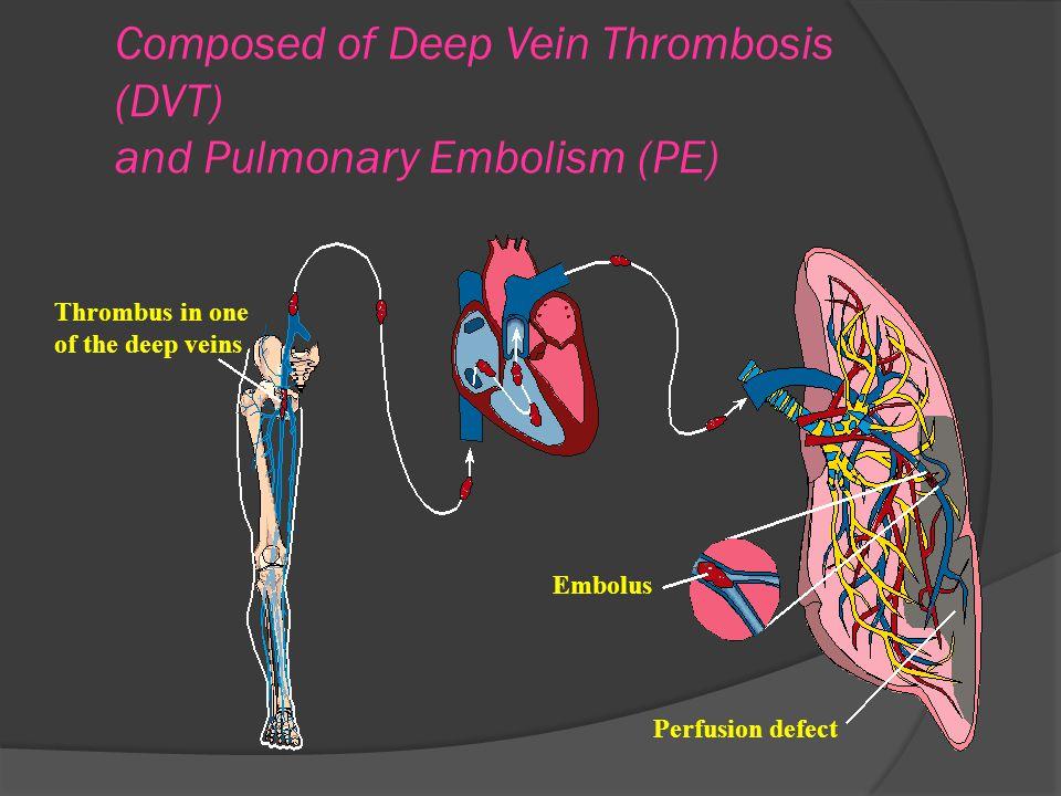 DVT'nin komplikasyonları Pulmoner emboli Posttrombotik sendrom