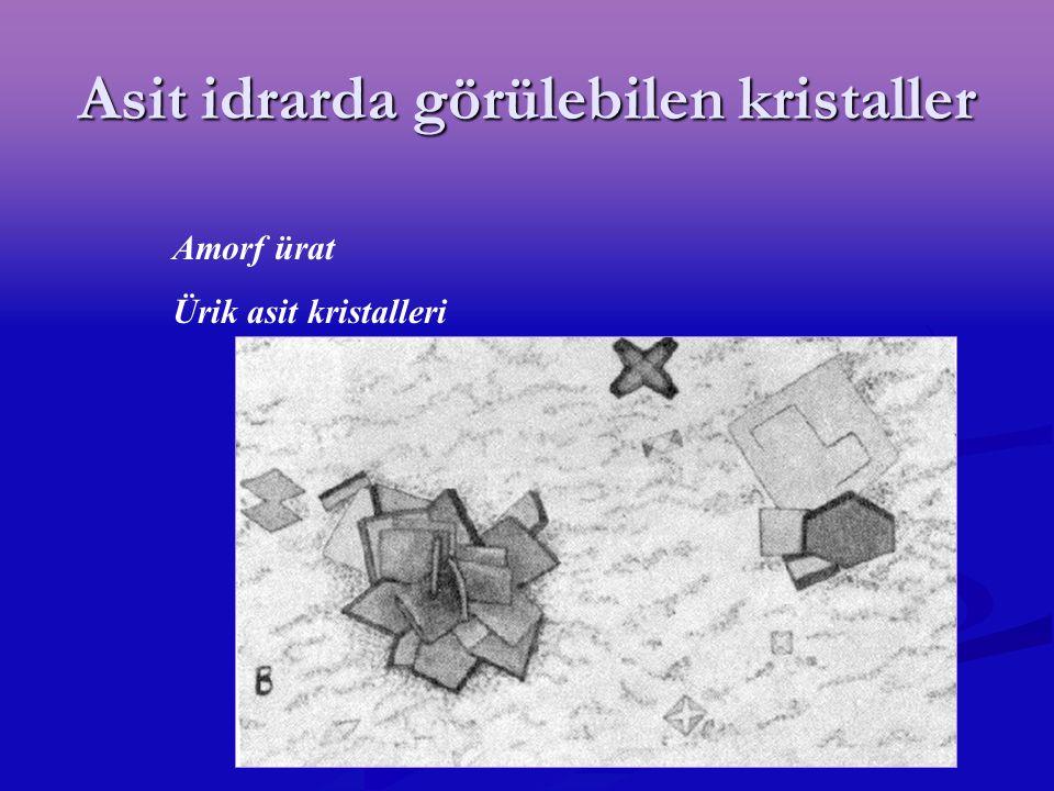Asit idrarda görülebilen kristaller Amorf ürat Ürik asit kristalleri
