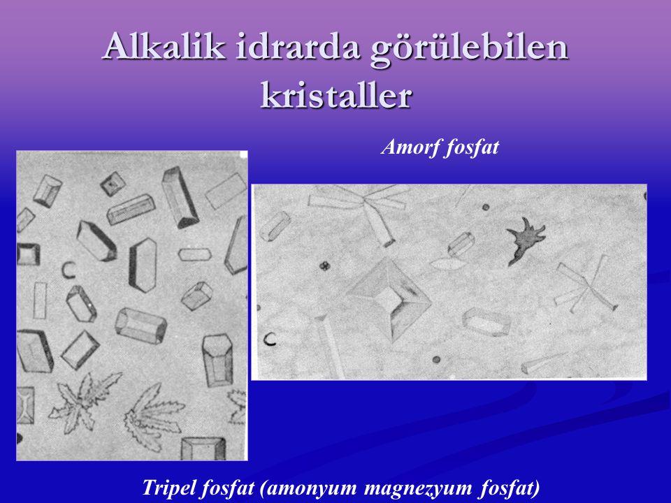 Alkalik idrarda görülebilen kristaller Amorf fosfat Tripel fosfat (amonyum magnezyum fosfat)