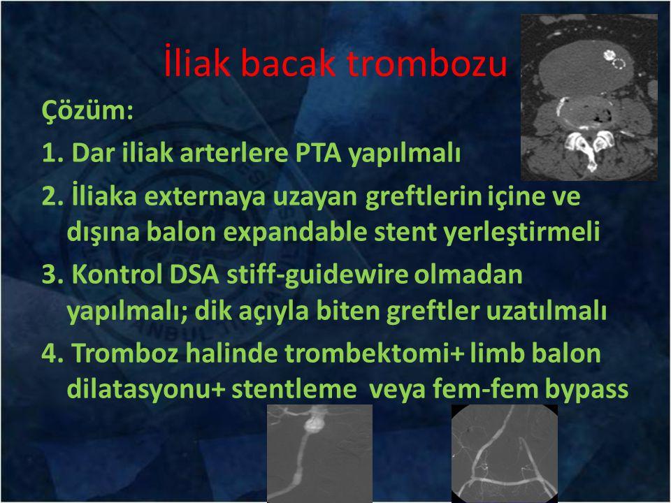 İliak bacak trombozu Çözüm: 1. Dar iliak arterlere PTA yapılmalı 2. İliaka externaya uzayan greftlerin içine ve dışına balon expandable stent yerleşti