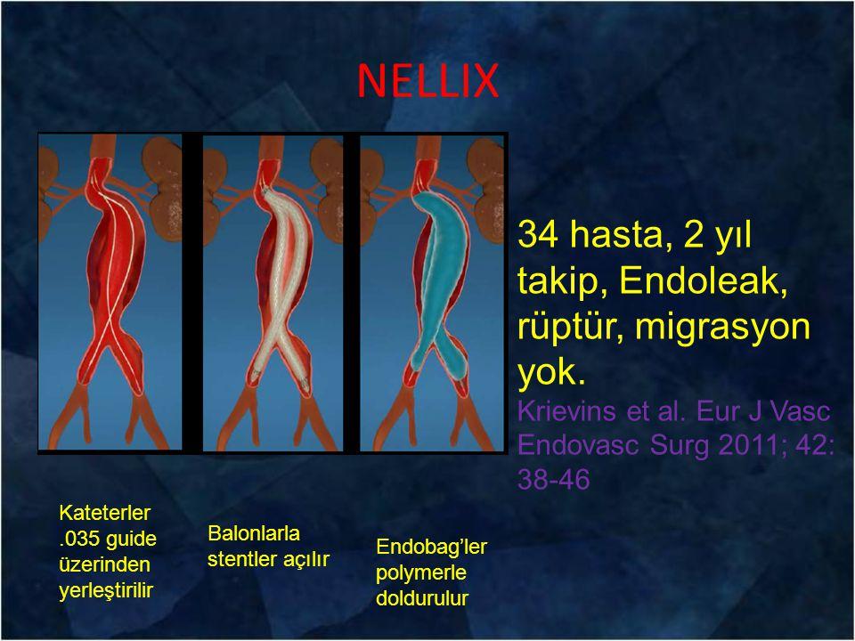NELLIX Kateterler.035 guide üzerinden yerleştirilir Balonlarla stentler açılır Endobag'ler polymerle doldurulur 34 hasta, 2 yıl takip, Endoleak, rüptü