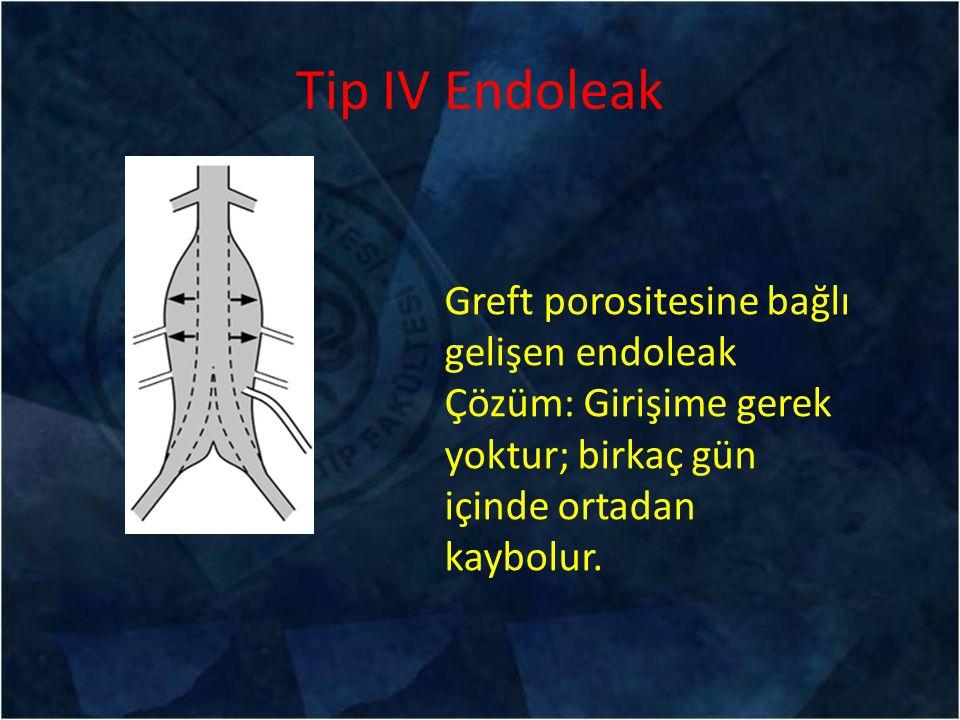 Tip IV Endoleak Greft porositesine bağlı gelişen endoleak Çözüm: Girişime gerek yoktur; birkaç gün içinde ortadan kaybolur.