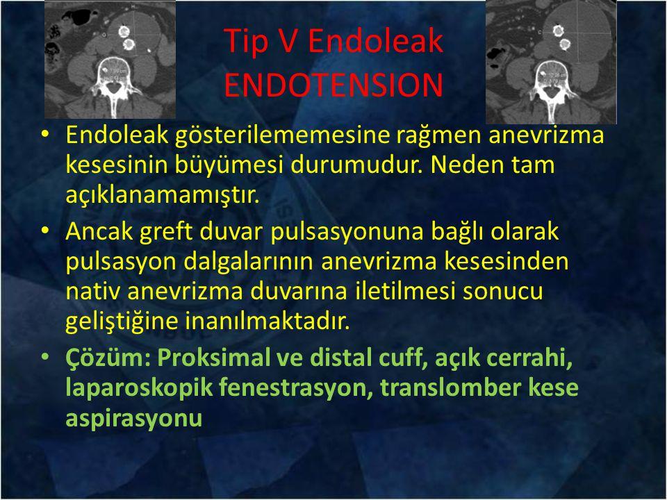 Tip V Endoleak ENDOTENSION Endoleak gösterilememesine rağmen anevrizma kesesinin büyümesi durumudur. Neden tam açıklanamamıştır. Ancak greft duvar pul