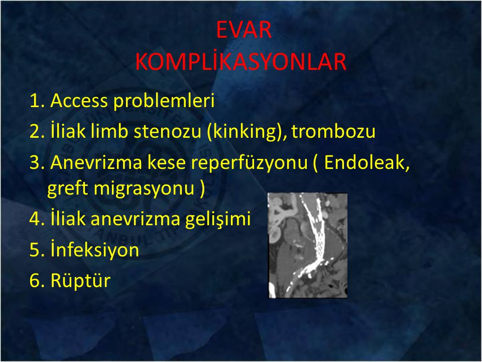 EVAR KOMPLİKASYONLAR 1. Access problemleri 2. İliak limb stenozu (kinking), trombozu 3. Anevrizma kese reperfüzyonu ( Endoleak, greft migrasyonu ) 4.