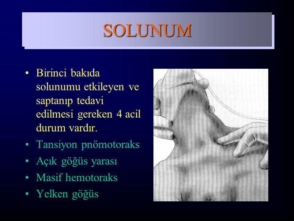 Birinci bakıda solunumu etkileyen ve saptanıp tedavi edilmesi gereken 4 acil durum vardır. Tansiyon pnömotoraks Açık göğüs yarası Masif hemotoraks Yel