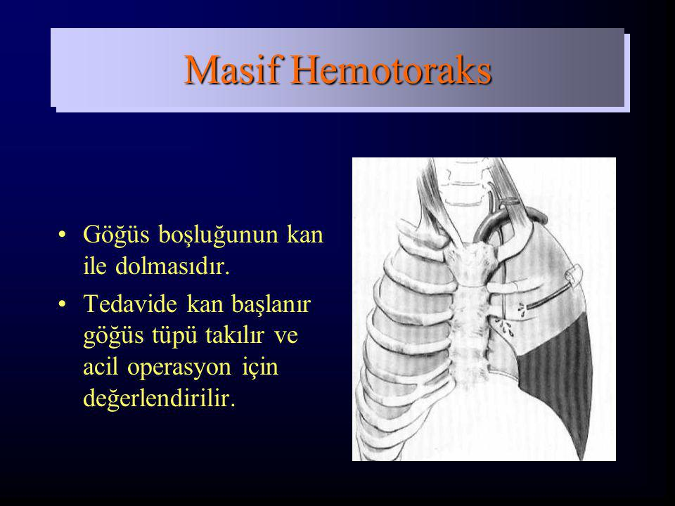 Göğüs boşluğunun kan ile dolmasıdır. Tedavide kan başlanır göğüs tüpü takılır ve acil operasyon için değerlendirilir. Masif Hemotoraks