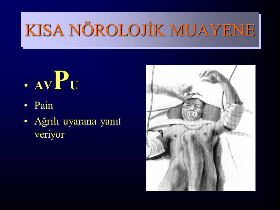 AV P UAV P U Pain Ağrılı uyarana yanıt veriyor KISA NÖROLOJİK MUAYENE