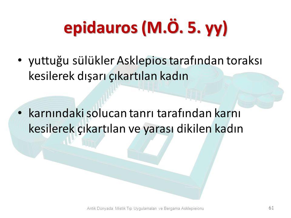 epidauros (M.Ö. 5. yy) yuttuğu sülükler Asklepios tarafından toraksı kesilerek dışarı çıkartılan kadın karnındaki solucan tanrı tarafından karnı kesil