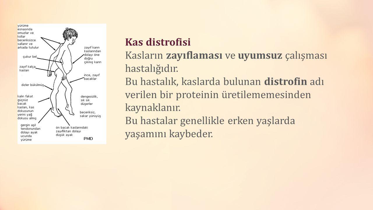 Kas distrofisi Kasların zayıflaması ve uyumsuz çalışması hastalığıdır. Bu hastalık, kaslarda bulunan distrofin adı verilen bir proteinin üretilememesi
