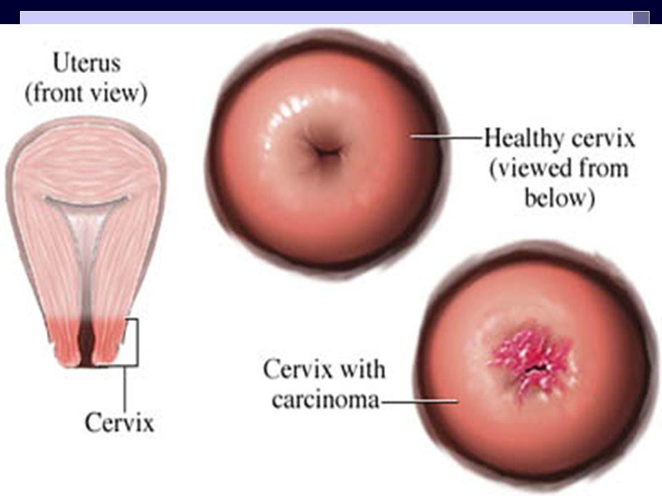  Serviks kanserlerinin >%90'ı skuamokolumnar bileşkeyi içeren 1 cm'lik bölgede başlar (portio vaginalis-veya-endoservikal kanal)