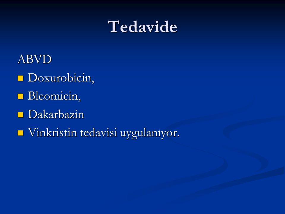 Tedavide ABVD Doxurobicin, Doxurobicin, Bleomicin, Bleomicin, Dakarbazin Dakarbazin Vinkristin tedavisi uygulanıyor. Vinkristin tedavisi uygulanıyor.