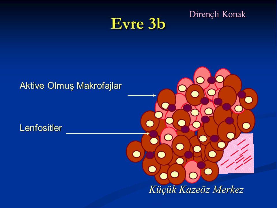 Evre 3b Dirençli Konak Aktive Olmuş Makrofajlar Lenfositler Küçük Kazeöz Merkez