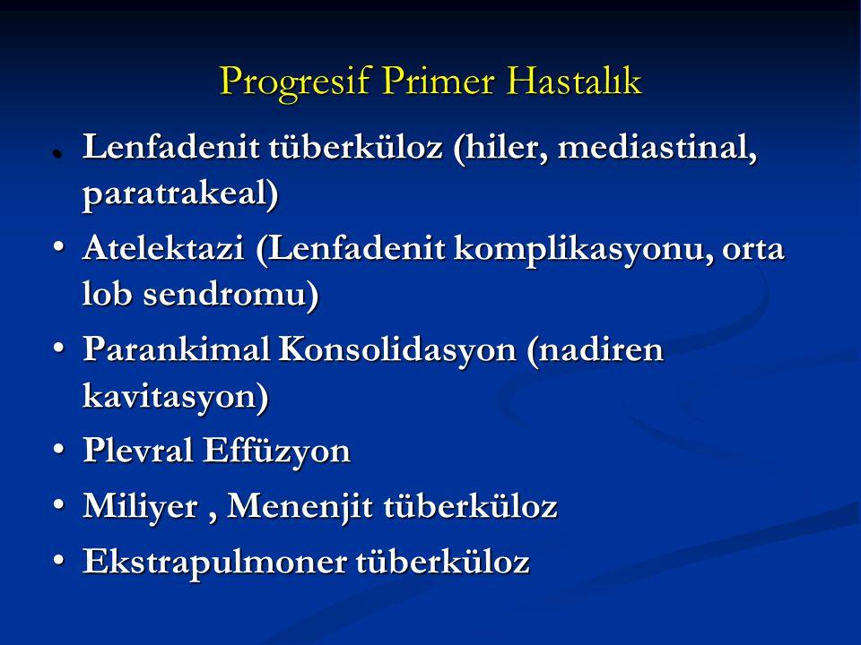 Progresif Primer Hastalık ● Lenfadenit tüberküloz (hiler, mediastinal, paratrakeal) Atelektazi (Lenfadenit komplikasyonu, orta lob sendromu) Atelektaz