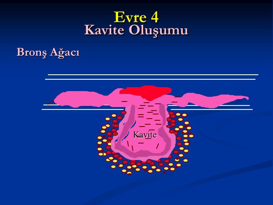Evre 4 Kavite Oluşumu Bronş Ağacı Kavite