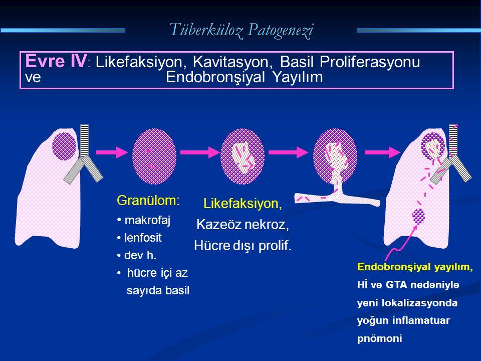 Tüberküloz Patogenezi Evre IV : Likefaksiyon, Kavitasyon, Basil Proliferasyonu ve Endobronşiyal Yayılım Granülom: makrofaj lenfosit dev h. hücre içi a
