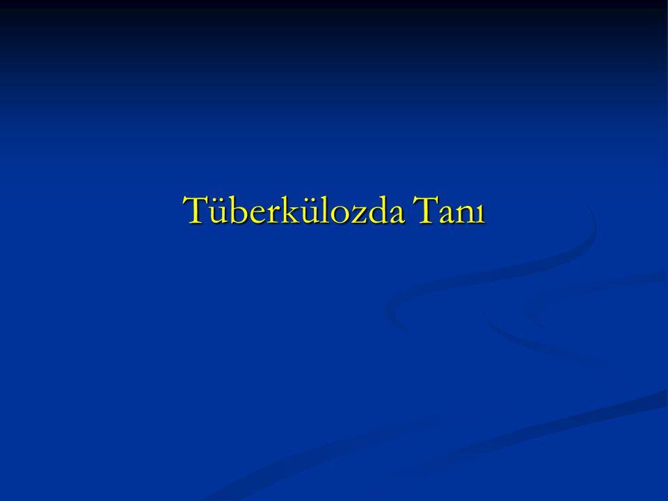 Tüberkülozda Tanı