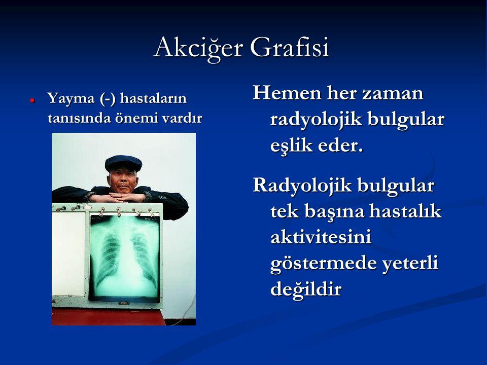 Akciğer Grafisi Yayma (-) hastaların tanısında önemi vardır Yayma (-) hastaların tanısında önemi vardır Hemen her zaman radyolojik bulgular eşlik eder