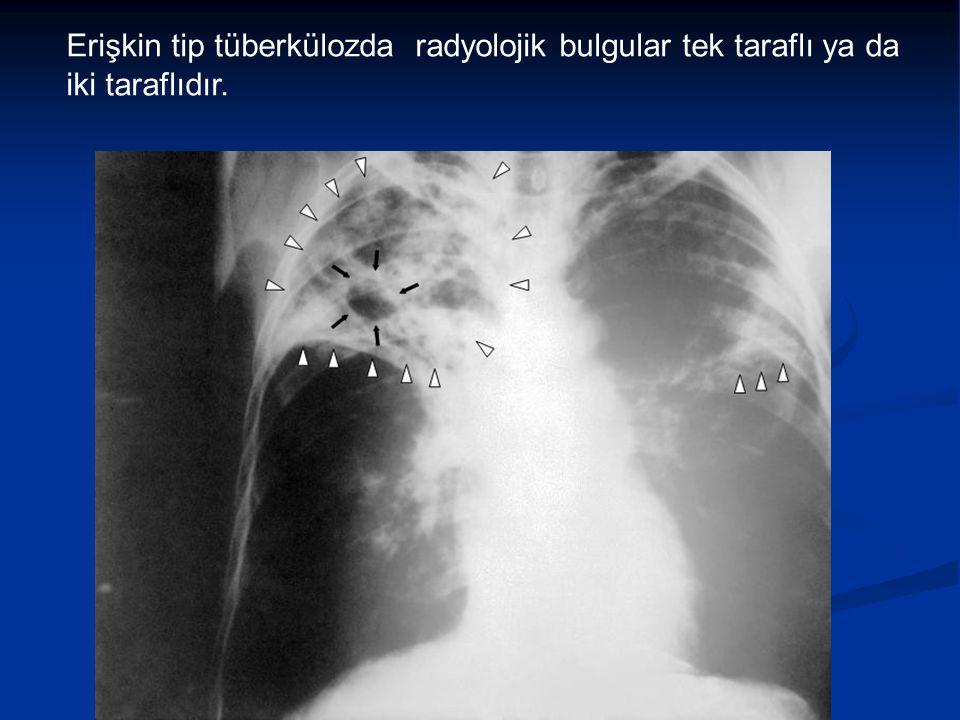 Erişkin tip tüberkülozda radyolojik bulgular tek taraflı ya da iki taraflıdır.