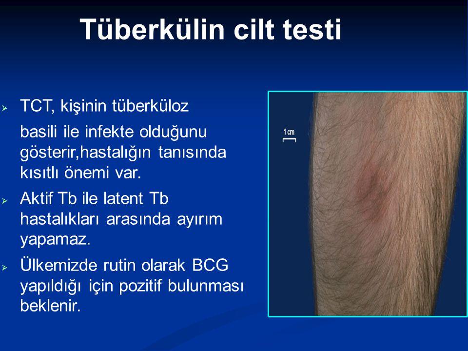 Tüberkülin cilt testi  TCT, kişinin tüberküloz basili ile infekte olduğunu gösterir,hastalığın tanısında kısıtlı önemi var.  Aktif Tb ile latent Tb