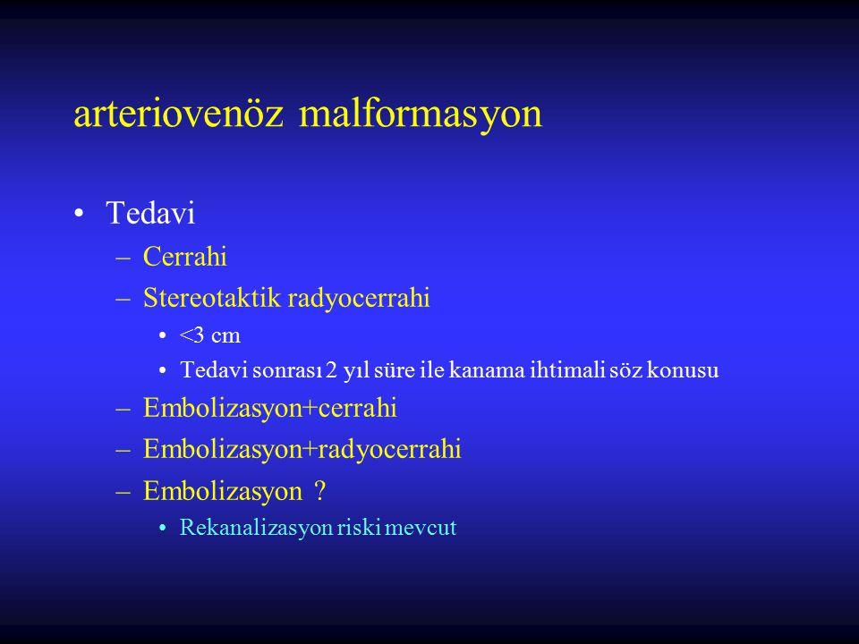 arteriovenöz malformasyon Tedavi –Cerrahi –Stereotaktik radyocerrahi <3 cm Tedavi sonrası 2 yıl süre ile kanama ihtimali söz konusu –Embolizasyon+cerr